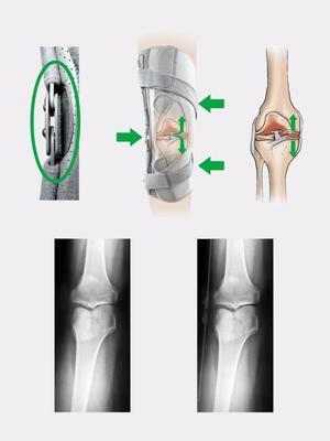 Ortéza na koleno s dvouosým kloubem ATTACK 2RA - 4
